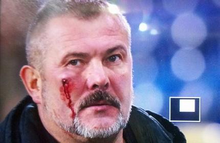 Побитий нардеп Береза прокоментував бійку настадіоні